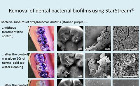 Watch as StarStream removes dental bacteria
