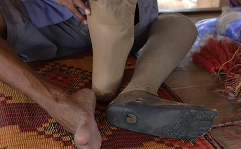 Prosthetic limb replacement