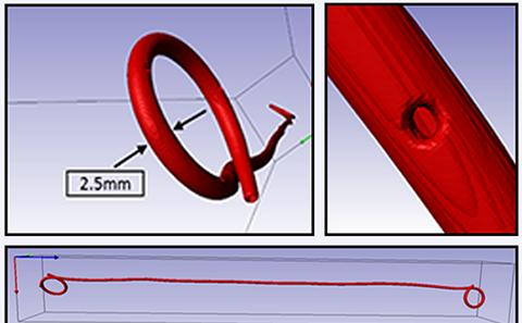 Fluid dynamics study on the mechanism of encrustation in ureteric stents