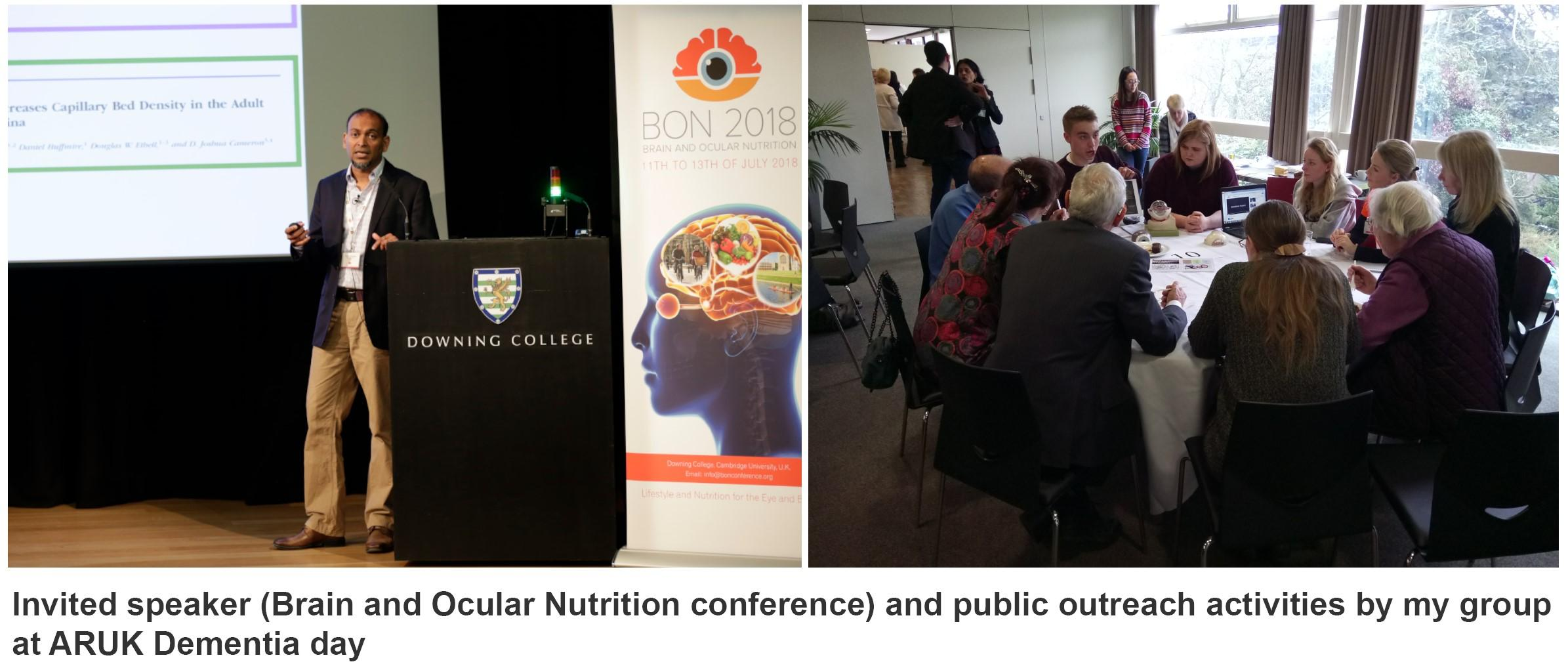 Brain and Ocular Nutrition Conference