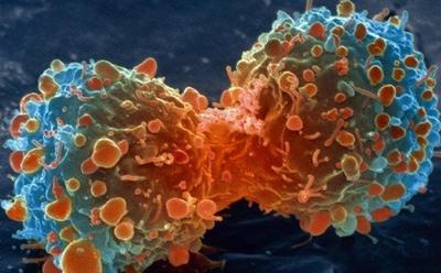 Dividing cancer cells