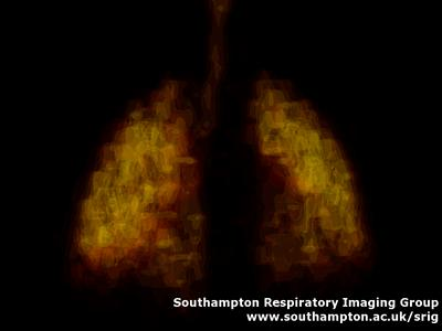 3D SPECT image showing the distribution of a radioactive gas in the lung