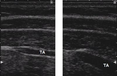 A biofeedback tool to obtain contraction of the transverse abdominis muscle