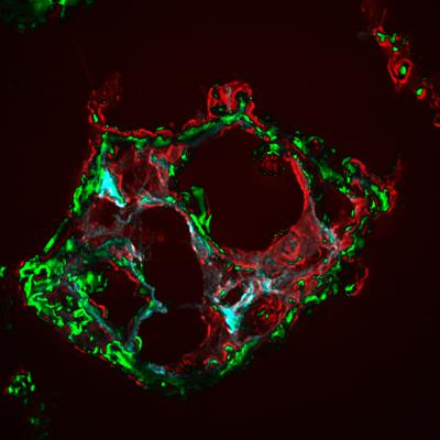 Placental tissue