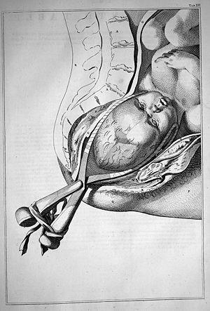 Forceps in Childbirth, William Smellie, 1754