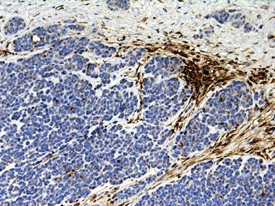A DFTD biopsy stained for B2-microglobulin (MHC class I). Host stromal cells are stain for B2-microglobulin (brown), while DFTD cells (blue nuclei) are B2-microglobulin negative