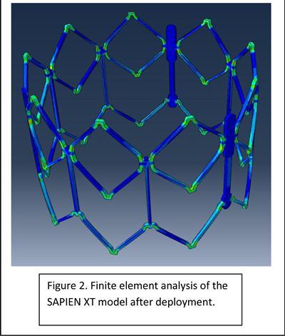 Finite element analysis of the SAPIEN XT model after deployment.