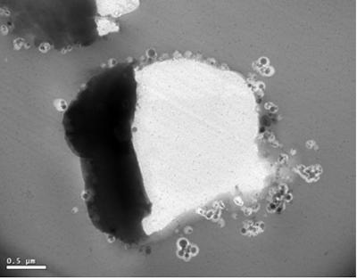 TEM of a PEEK-Alumina suspension showing the aggregation between the particles