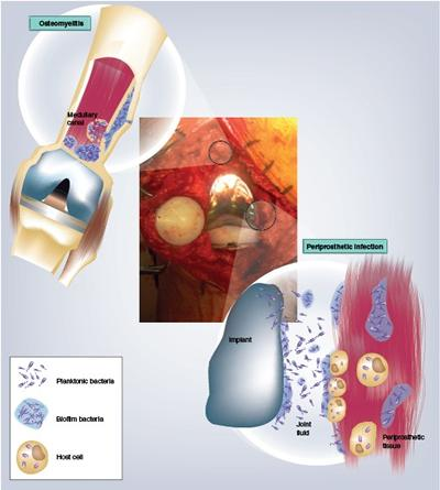 Biofilms in periprosthetic infections