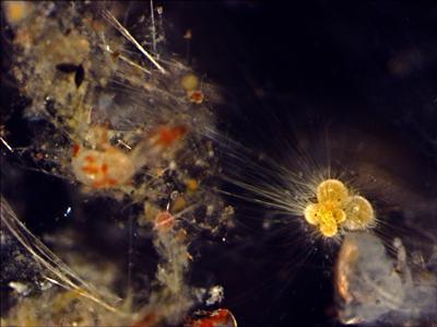 Globigerinella siphonifera