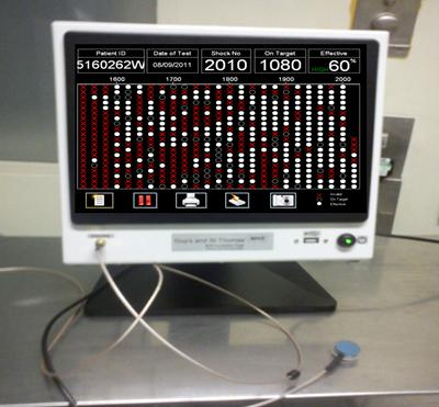 The Lithocheck screen