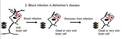 Blood infection in Alzheimer's...