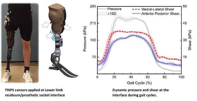 Lower limb prosthetics
