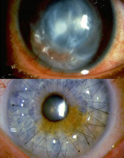 Before and after corneal transplant