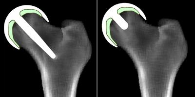 Virtual x-Rays showing Predictions of Bone Remodelling and Healing around Hip Resurfacing Implant Concepts