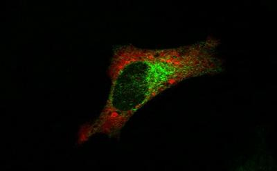 Confocal image of mRNA and proteins of the potassium leak channel Task3. HeLa cells transfected with Task3-GFP. Task-GFP mRNA detected by FISH using anti-GFP Stellaris
