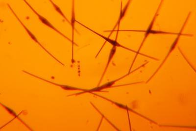 Ceratium fusus, a dominant dinoflagellate in SCM thin layers in 2015