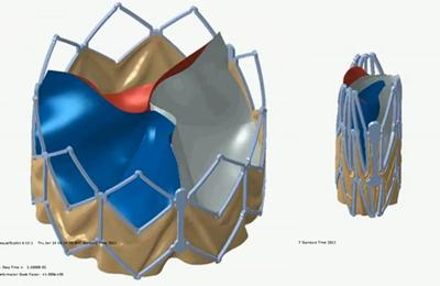 Artifical heart valves are increasingly being deployed as replacements.
