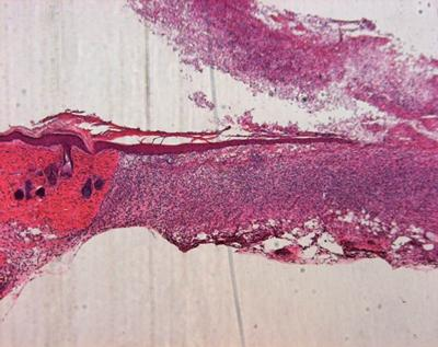 A healing wound with migrating epithelium