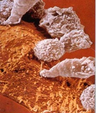 Cytotoxic T Cells (CTL)