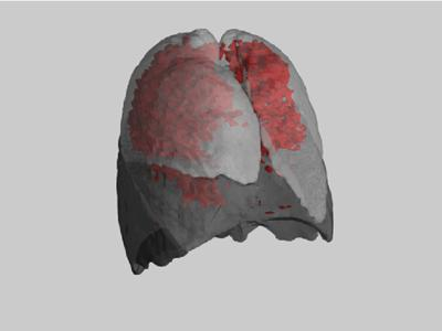 Example of the distrubution of emphysema throughout the lung, of a subject with moderate COPD