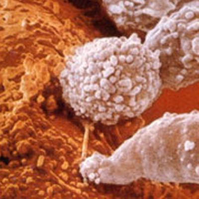 Cytotoxic T-cells on a tumor cell