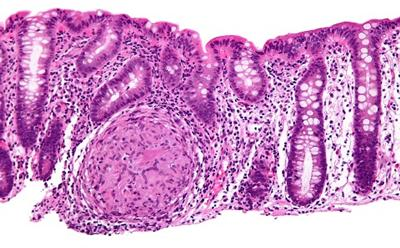 Histological view of inflammation in Crohn's disease