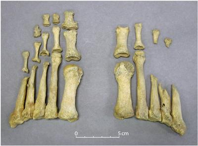 Lesions characteristic of leprosy in the feet of Co. Kildare skeleton