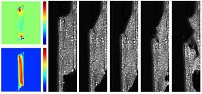 digital image correlation of joint