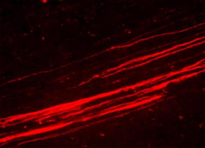 Axonal projections from iPSC-neural precursor cell transplants in the cerebral cortex