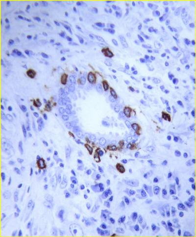Fig 1: Mast cells around a small blood vessel identified by immunohistochemistry with tryptase-specific monoclonal antibody AA1.