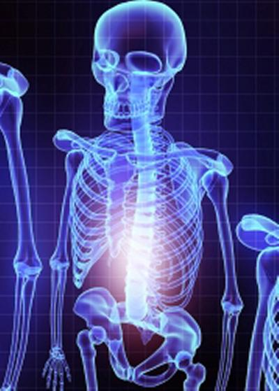 Bariatric surgery does not increase risk of broken bones