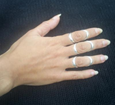 silver ring splints alleviate symptoms of arthritis