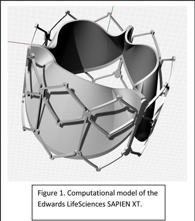 Computational model of the Edwards LifeSciences SAPIEN XT.