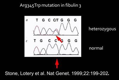 Electropherogram of mutation which causes Doyne Disease