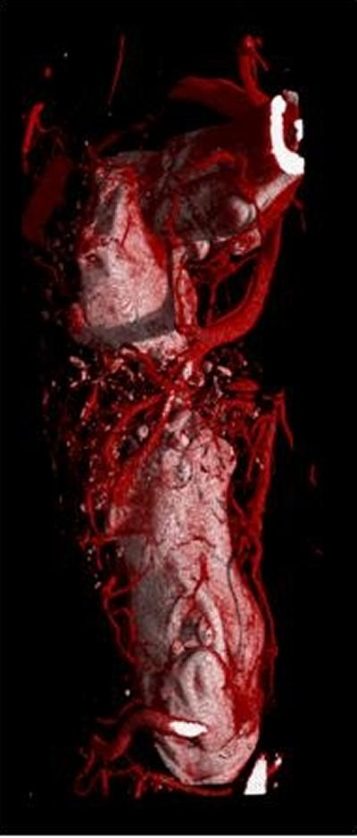 3D image of perfused contrast vascular dye (red) depicting the blood vessels in a critical sized bone defect