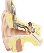 The implant is the UK's first totally implantable hearing aid