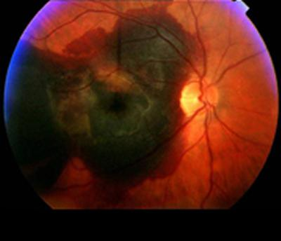 Seven genetic risk factors found to be associated with AMD