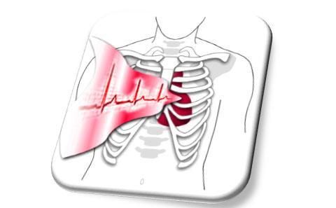ECG image