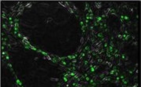 MSCs and endothelial cells