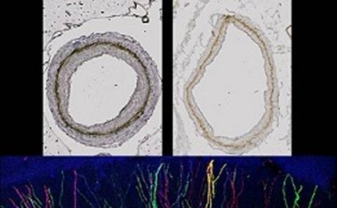 Arteries and neurons