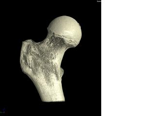 What is Involved for Bone Samples