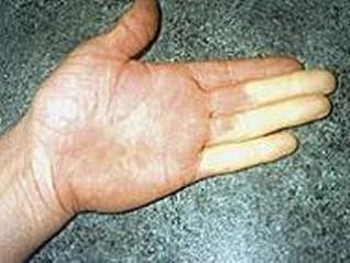Vibration induced white finger (VWF)