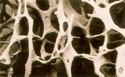 Osteoporotic fractures