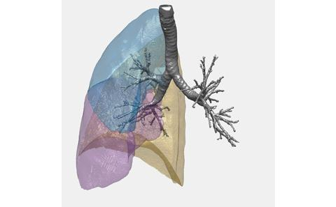 Lung system