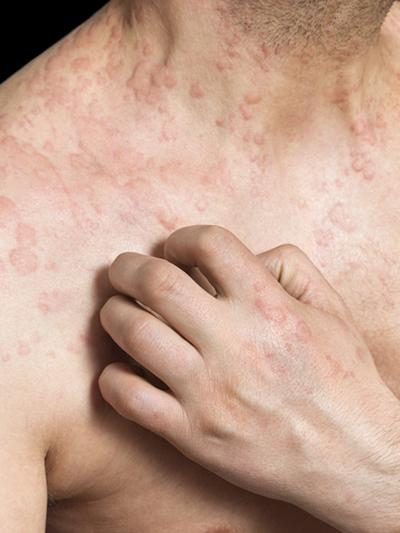 Chronic inflammatory skin diseases