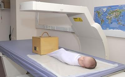 baby DXA scan