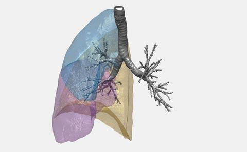 CT scan data lung structure