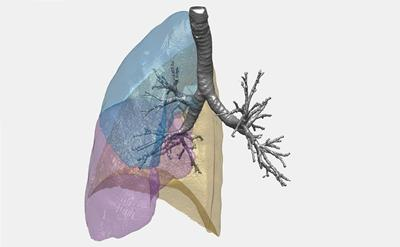 CT scan data of lung