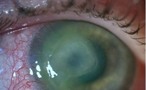 Infected eye